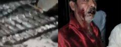 മാന്ദാമംഗലം പള്ളിയില് യാക്കോബായ-ഓര്ത്തഡോക്സ് വിശ്വാസികള് ഏറ്റുമുട്ടി; നിരവധി പേര്ക്ക് പരിക്ക്, സ്ഥലത്ത് വന് പോലീസ് സന്നാഹം