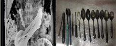 വയറുവേദനയ്ക്കു ചികിൽസ തേടിയ യുവാവിന്റെ വയറിൽ 8 സ്പൂൺ, ബ്രഷുകൾ കറിക്കത്തി; ഞെട്ടി ഡോക്ടർ